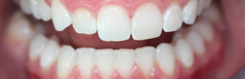 After tooth whitening treatment at Orchard House Dental, Beckenham